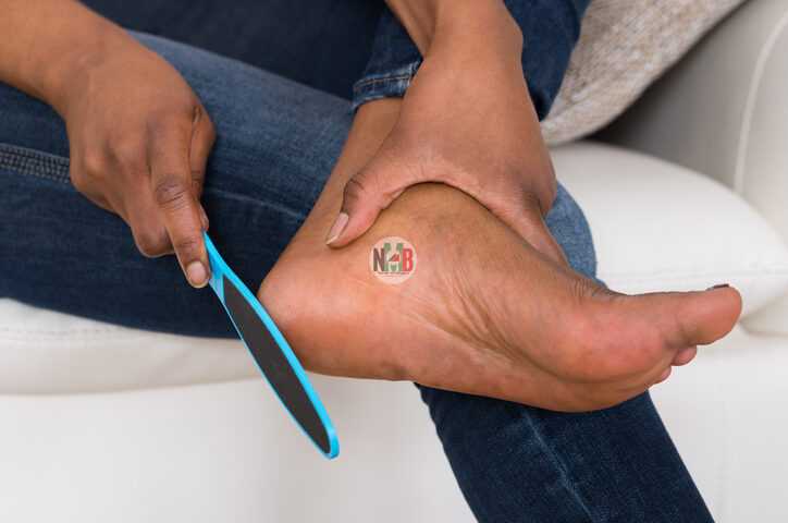 To Get Rid of Cracked heels At Home